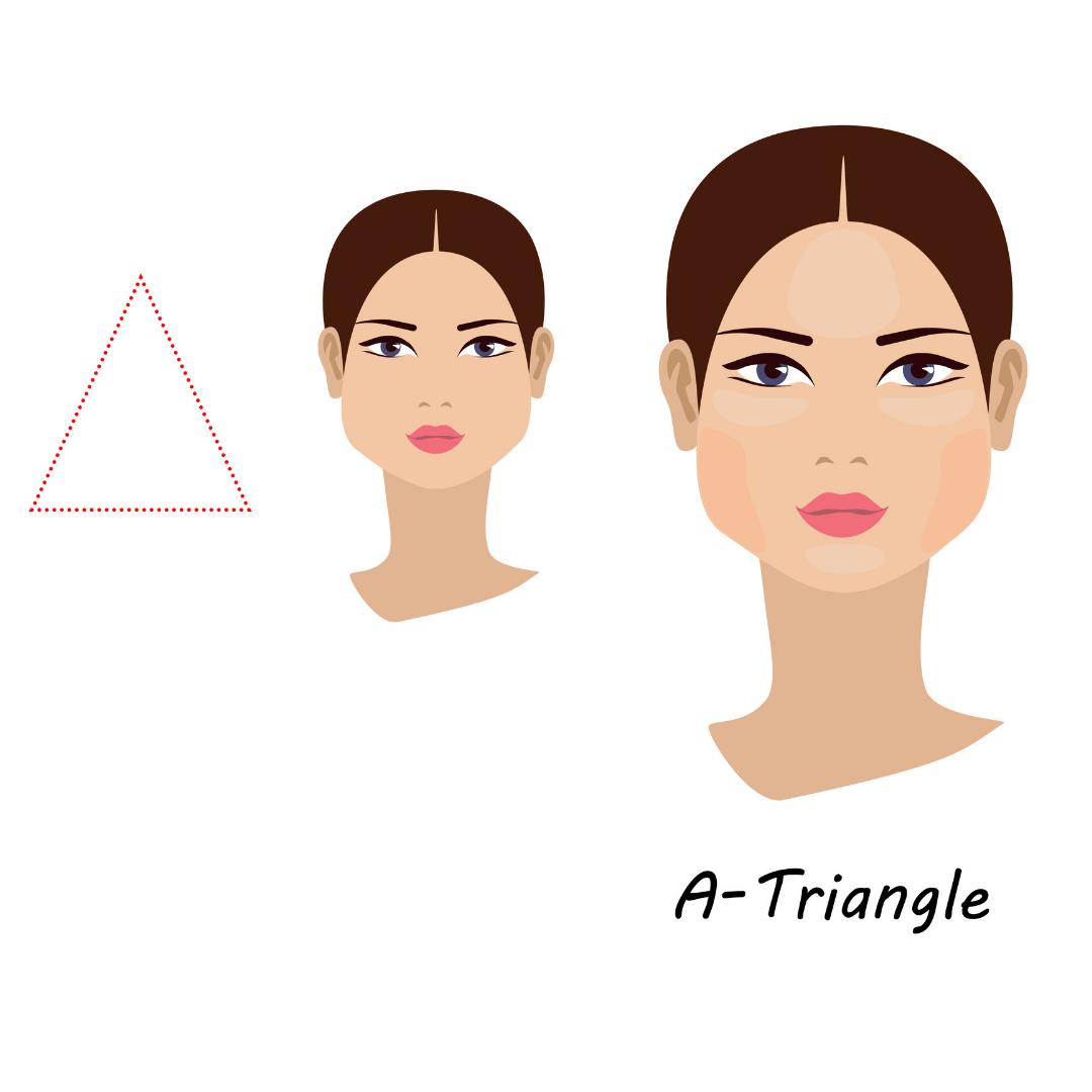 depiction of triangular face shape and best dermal filler application